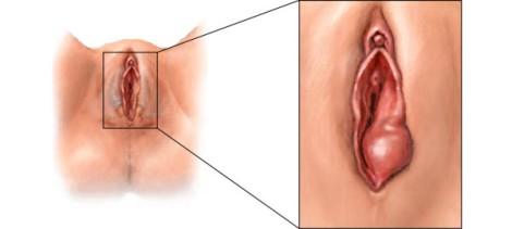 ginecologos-en-murcia