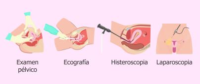 Tratamiento de fertilidad Murcia
